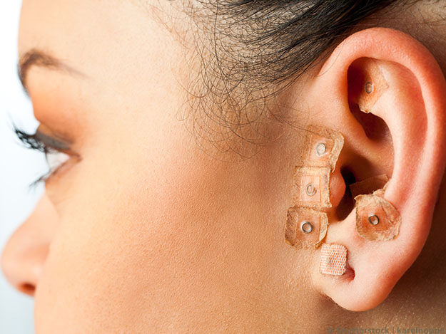 KEM: Studienaufruf: Ohrakupunktur in der Behandlung von Schlafstörungen nach Brustkrebs